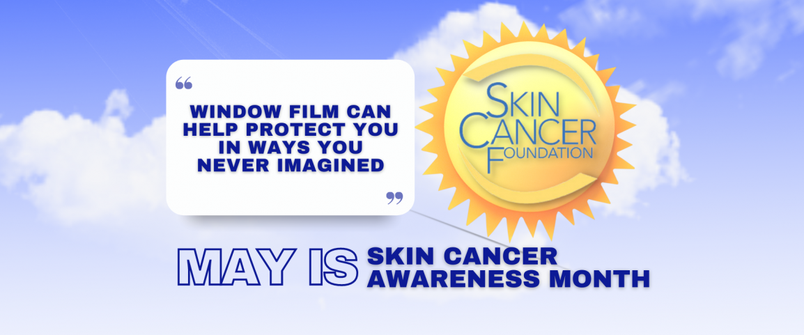 May Is Skin Cancer Awareness Month - See How Window Film Helps - Window Film and Window Tinting Services in Dubuque, Iowa
